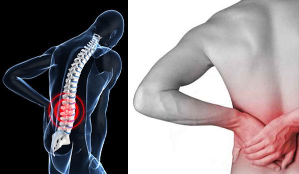 Απαλλαγείτε από τους πόνους της μέσης